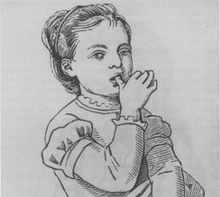 Persistent thumb-sucking is considered a bad habit in children as it may affect the development of the teeth.[1]